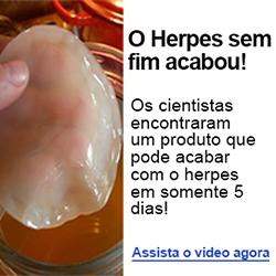 Tratamento Natural Herpes